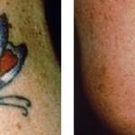 Rimozione Tatuaggi: prima visita gratuita!