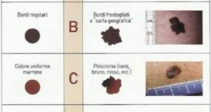 Chirurgia Micrografica di MOHS per i tumori cutanei