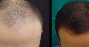 Trapianto autologo dei capelli