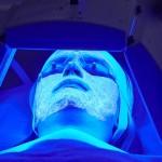 Novità nella cura dell'acne: trattamento Biofotonico