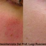Videointervista del prof. Luigi Rusciani sul trattamento di laserterapia per le lesioni vascolari