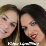 Video lipofilling Dott. Antonio Rusciani