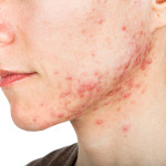 Cura l'acne con la terapia biofotonica. Visita gratuita.