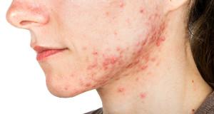 Cura l'acne con la terapia biofotonica!