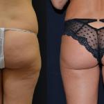 Liposuzione e Bodytite del Dott. Antonio Rusciani