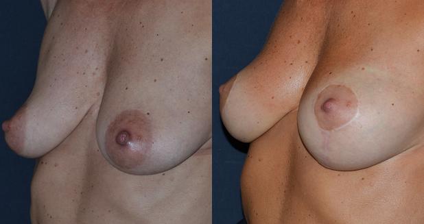 chirurgia-del-seno-rusciani-prima-e-dopo