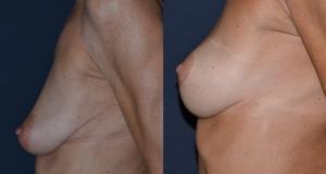 CHIRURGIA DEL SENO : Prima e Dopo Mastopessi senza protesi