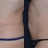 Liposuzione e Bodytite Dr Antonio Rusciani: Prima e Dopo