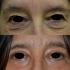 Blefaroplastica superiore ed inferiore: l'intervento in sintesi